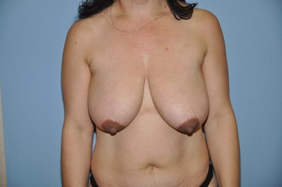 Breast Reduction Gallery - Patient 6389828 - Image 1