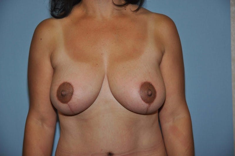 Breast Reduction Gallery - Patient 6389828 - Image 2