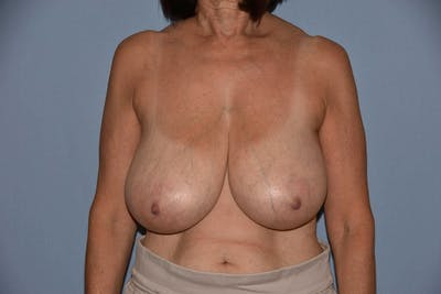 Breast Reduction Gallery - Patient 6389829 - Image 4
