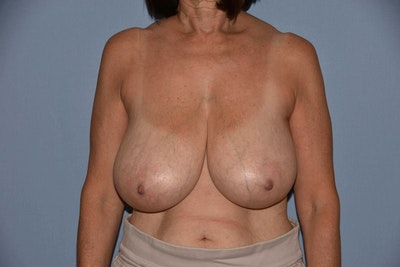 Breast Reduction Gallery - Patient 6389829 - Image 1
