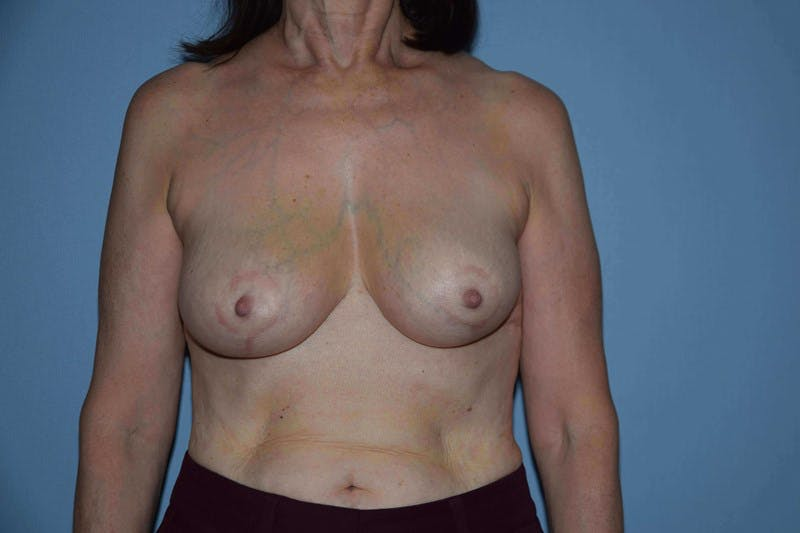 Breast Reduction Gallery - Patient 6389829 - Image 2
