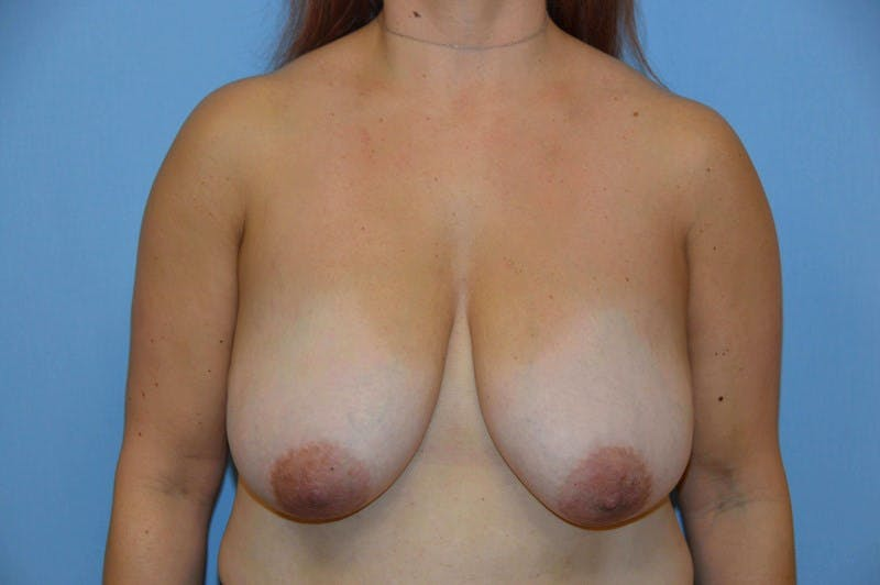 Breast Reduction Gallery - Patient 6389830 - Image 1