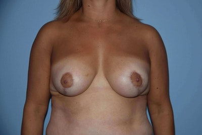 Breast Reduction Gallery - Patient 6389830 - Image 2