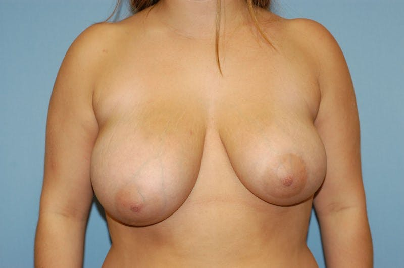 Breast Reduction Gallery - Patient 6389831 - Image 1