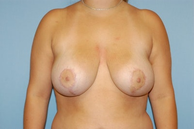 Breast Reduction Gallery - Patient 6389831 - Image 2