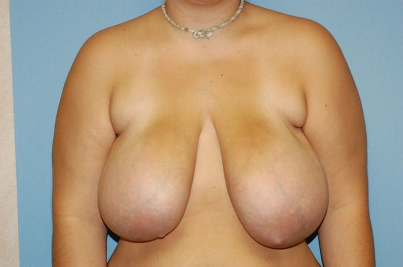 Breast Reduction Gallery - Patient 6389833 - Image 1