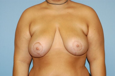 Breast Reduction Gallery - Patient 6389833 - Image 2