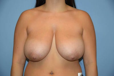 Breast Reduction Gallery - Patient 6389834 - Image 8