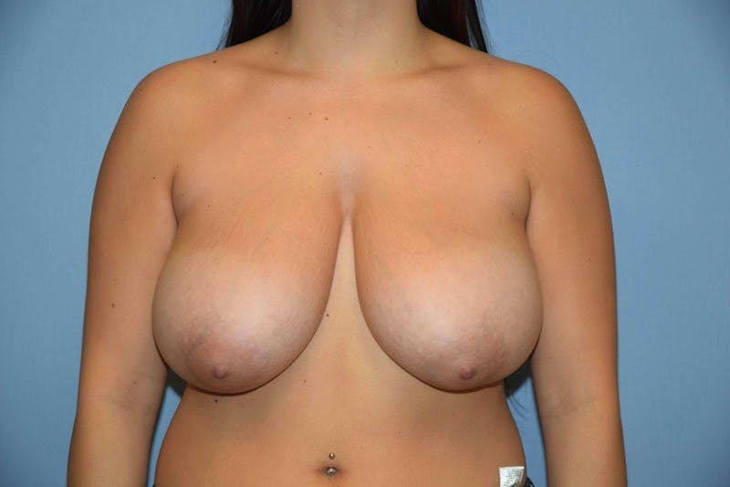 Breast Reduction Gallery - Patient 6389834 - Image 1