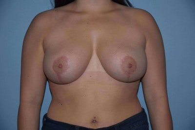 Breast Reduction Gallery - Patient 6389834 - Image 2
