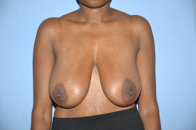 Breast Reduction Gallery - Patient 6389835 - Image 1