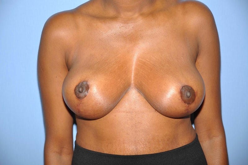 Breast Reduction Gallery - Patient 6389835 - Image 2