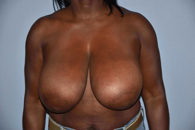 Breast Reduction Gallery - Patient 6389837 - Image 1