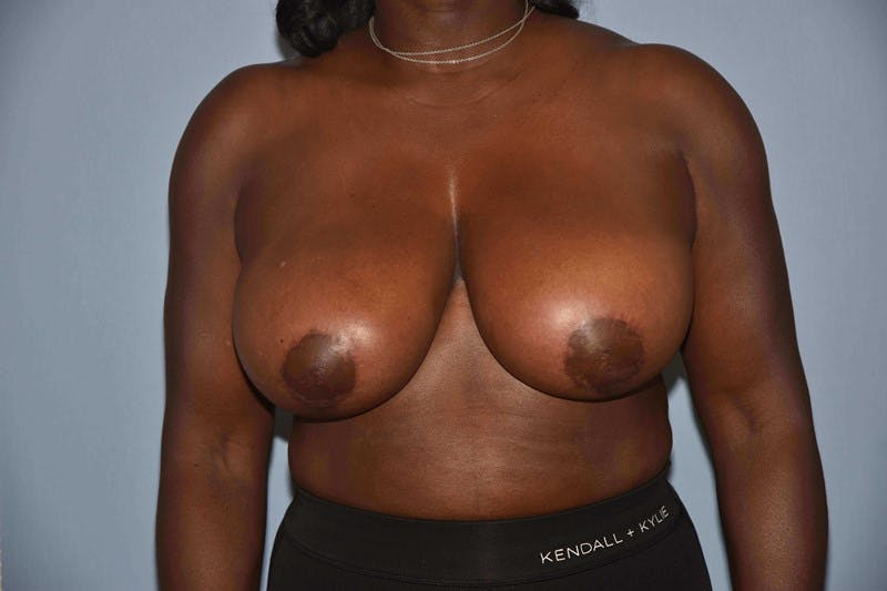 Breast Reduction Gallery - Patient 6389837 - Image 2