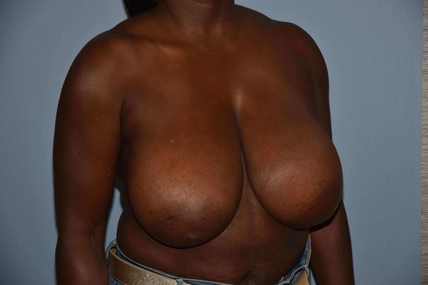 Breast Reduction Gallery - Patient 6389837 - Image 3
