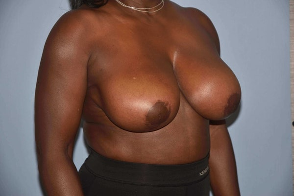 Breast Reduction Gallery - Patient 6389837 - Image 4