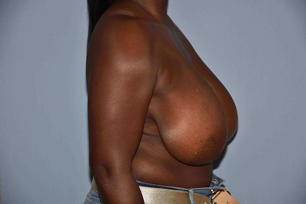 Breast Reduction Gallery - Patient 6389837 - Image 5