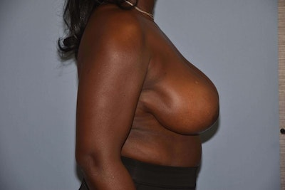 Breast Reduction Gallery - Patient 6389837 - Image 6