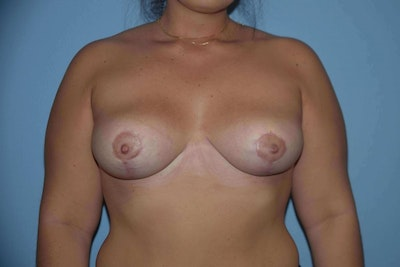 Breast Reduction Gallery - Patient 6389838 - Image 2