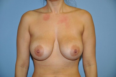 Breast Reduction Gallery - Patient 6389840 - Image 1