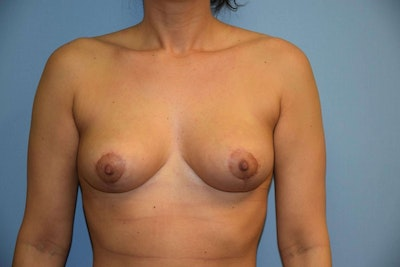 Breast Reduction Gallery - Patient 6389840 - Image 2