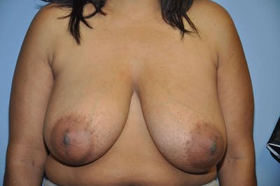 Breast Reduction Gallery - Patient 6389841 - Image 13