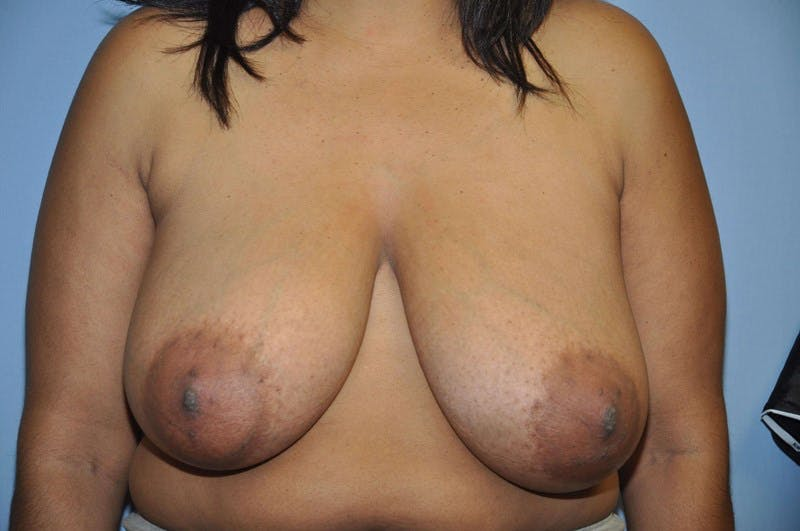 Breast Reduction Gallery - Patient 6389841 - Image 1