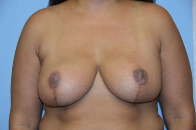 Breast Reduction Gallery - Patient 6389841 - Image 2