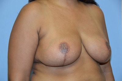 Breast Reduction Gallery - Patient 6389841 - Image 4