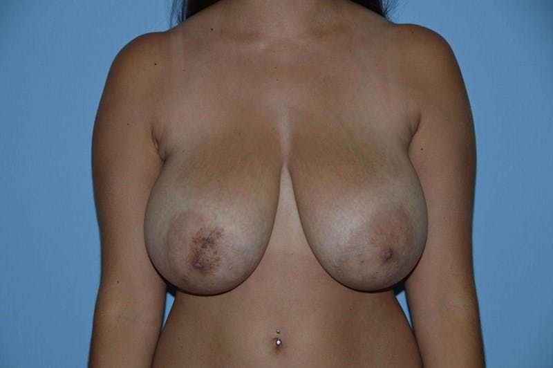 Breast Reduction Gallery - Patient 6389842 - Image 1