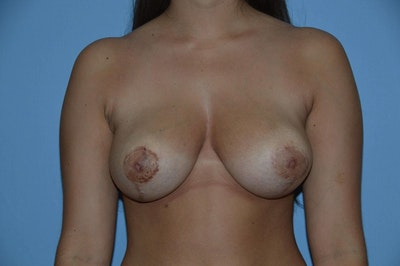 Breast Reduction Gallery - Patient 6389842 - Image 2