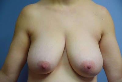 Breast Reduction Gallery - Patient 6389845 - Image 15