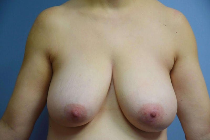 Breast Reduction Gallery - Patient 6389845 - Image 1