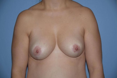 Breast Reduction Gallery - Patient 6389845 - Image 2