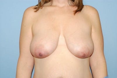Breast Reduction Gallery - Patient 6389846 - Image 16