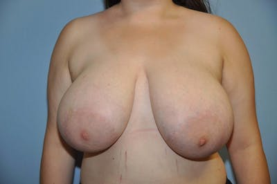 Breast Reduction Gallery - Patient 6389849 - Image 18