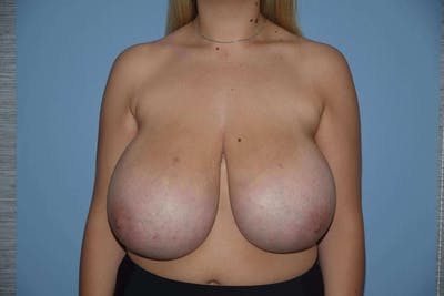 Breast Reduction Gallery - Patient 6389850 - Image 19