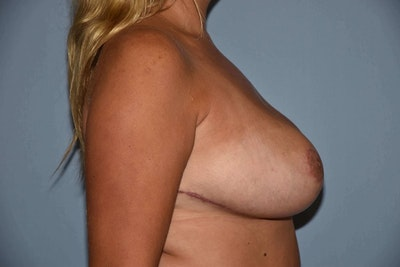 Breast Reduction Gallery - Patient 6389850 - Image 6