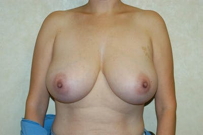 Breast Reduction Gallery - Patient 6389851 - Image 20