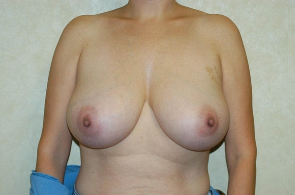 Breast Reduction Gallery - Patient 6389851 - Image 1
