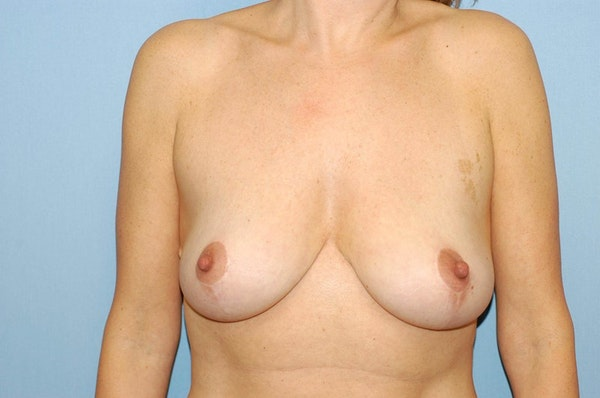 Breast Reduction Gallery - Patient 6389851 - Image 2