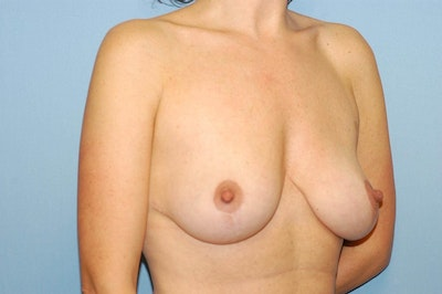 Breast Reduction Gallery - Patient 6389851 - Image 4