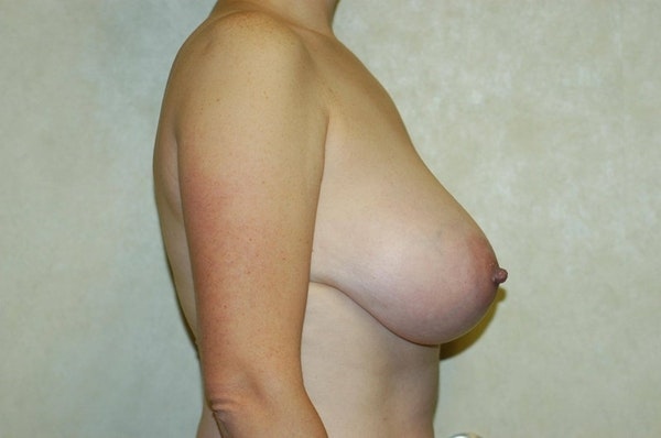 Breast Reduction Gallery - Patient 6389851 - Image 5