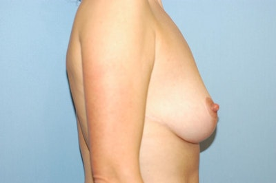 Breast Reduction Gallery - Patient 6389851 - Image 6