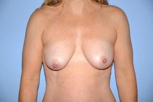 Breast Augmentation + Lift