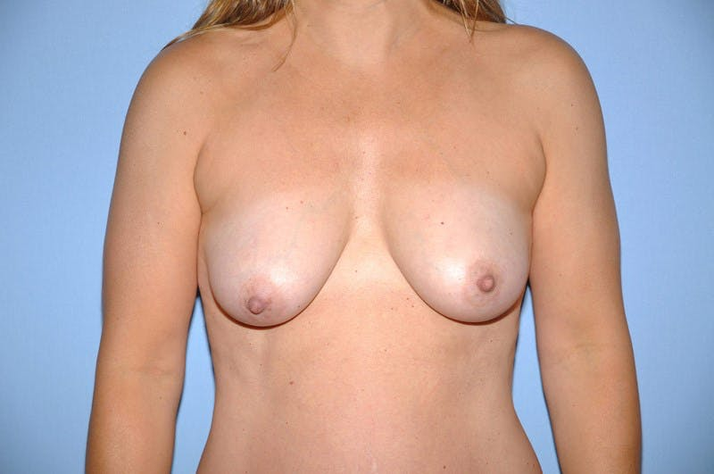Breast Augmentation Lift Gallery - Patient 6389852 - Image 1