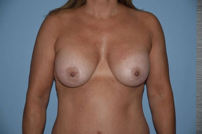 Breast Augmentation Lift Gallery - Patient 6389852 - Image 2