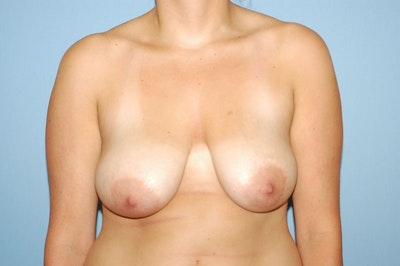 Breast Augmentation Lift Gallery - Patient 6389853 - Image 1