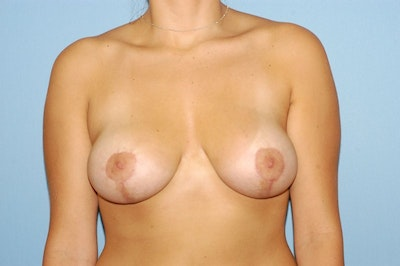 Breast Augmentation Lift Gallery - Patient 6389853 - Image 2