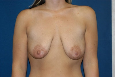 Breast Augmentation Lift Gallery - Patient 6389855 - Image 1